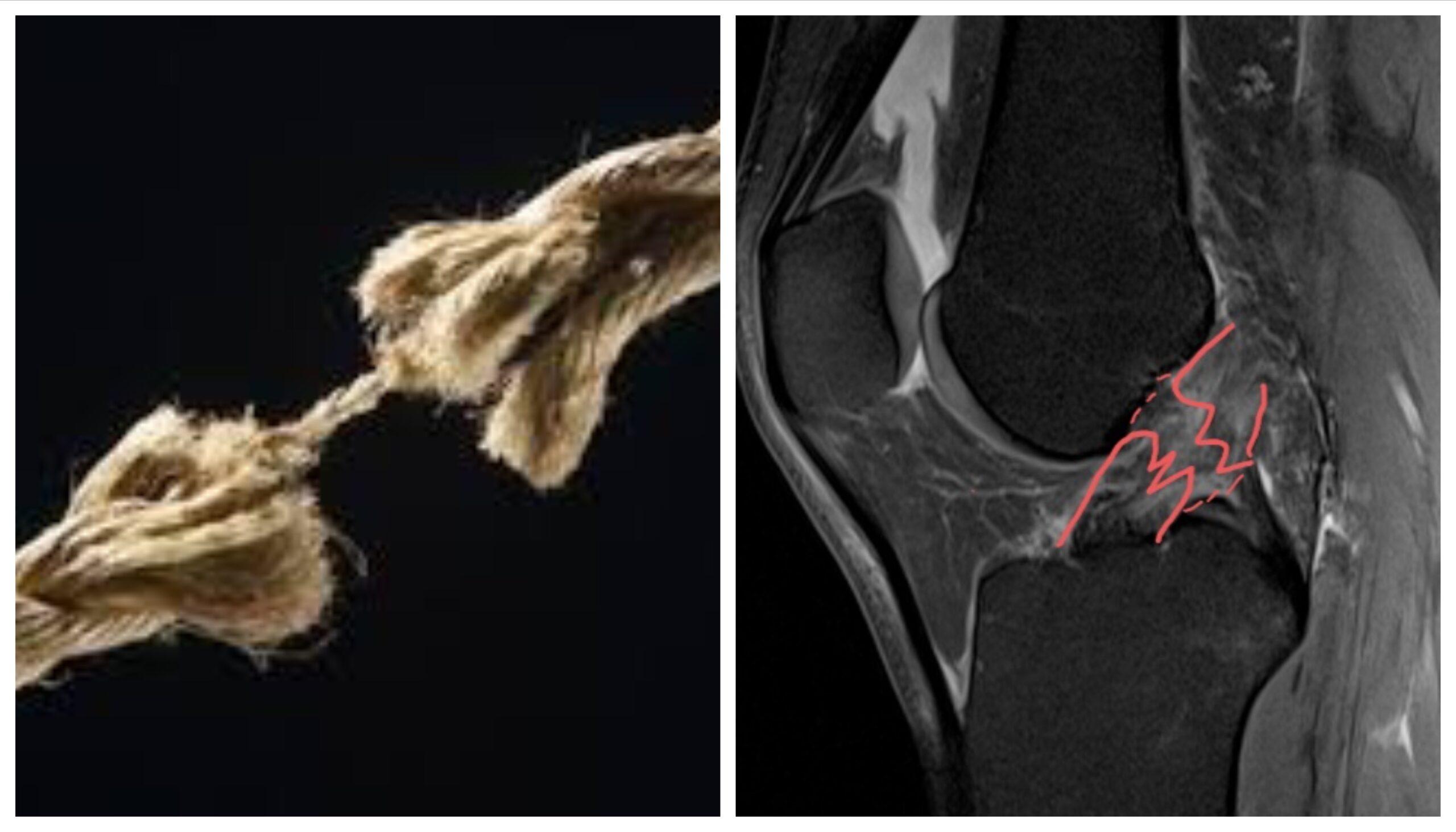 RMN-ul de genunchi